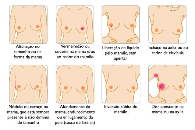 12 sintomas do cancer de mama 16518 l