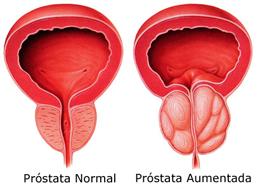 prostata normal e aumentada